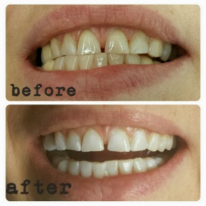 Teeth Whitening Richmond Hill